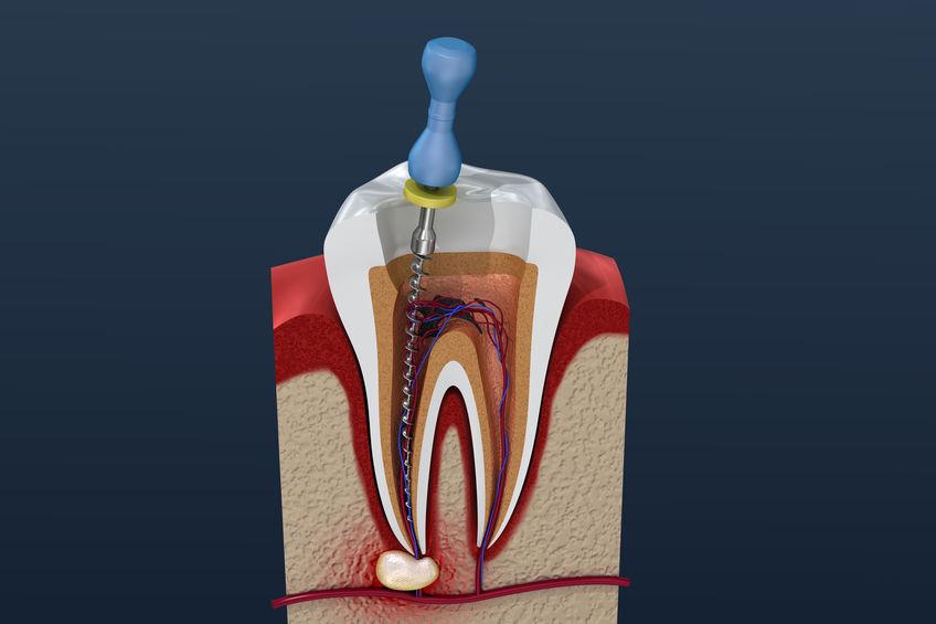 Füllungstherapie in der Zahnarztpraxis Pyzara Dresden